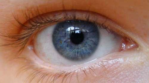 melanoma_oculare